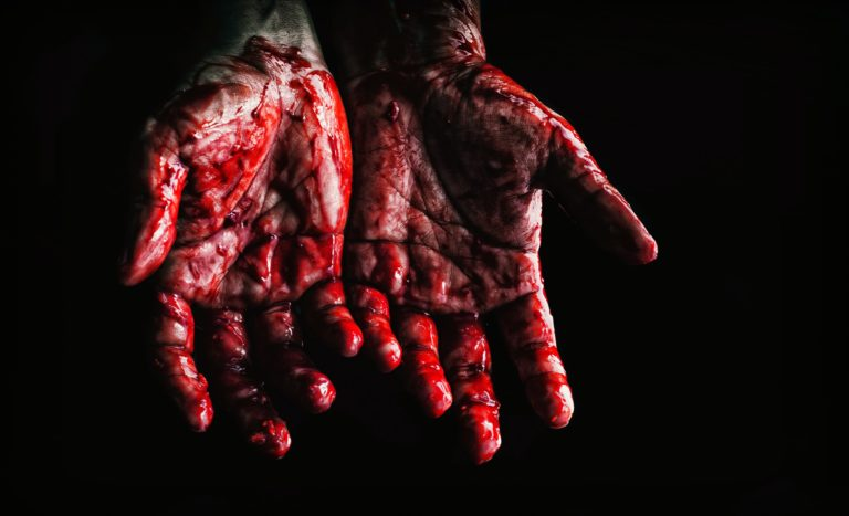 des mains en sang paumes de la main vers l'avant