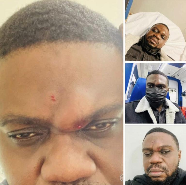 L'artiste Aimé Nkanu victime d'agression